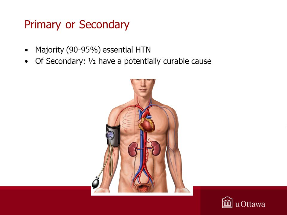 Primary or Secondary Majority (90-95%) essential HTN