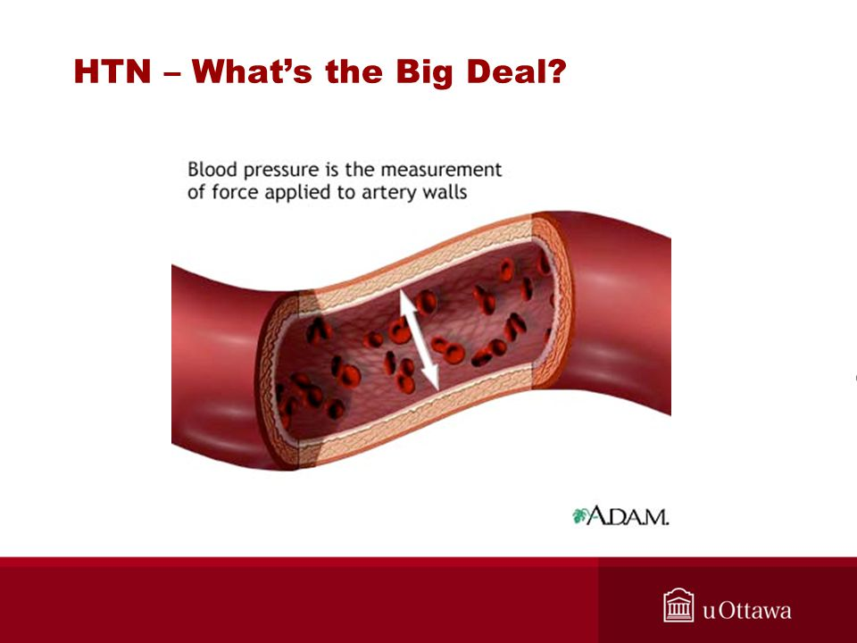 HTN – What's the Big Deal