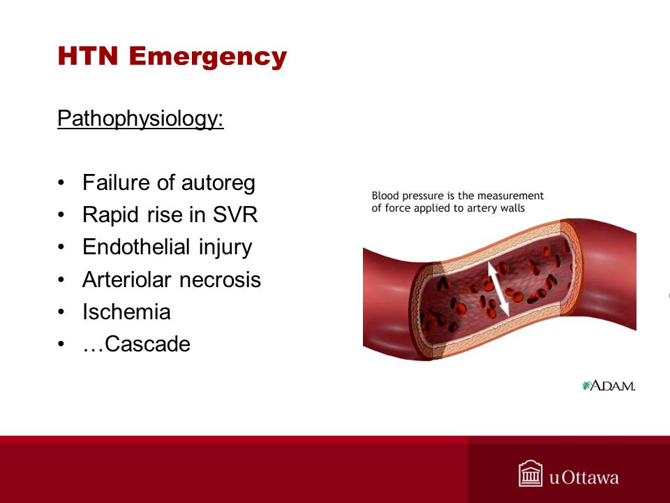 HTN Emergency Pathophysiology: Failure of autoreg Rapid rise in SVR