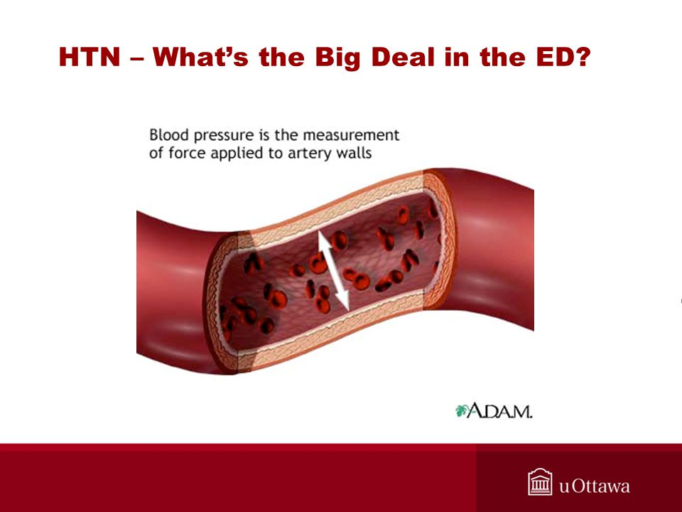 HTN – What's the Big Deal in the ED