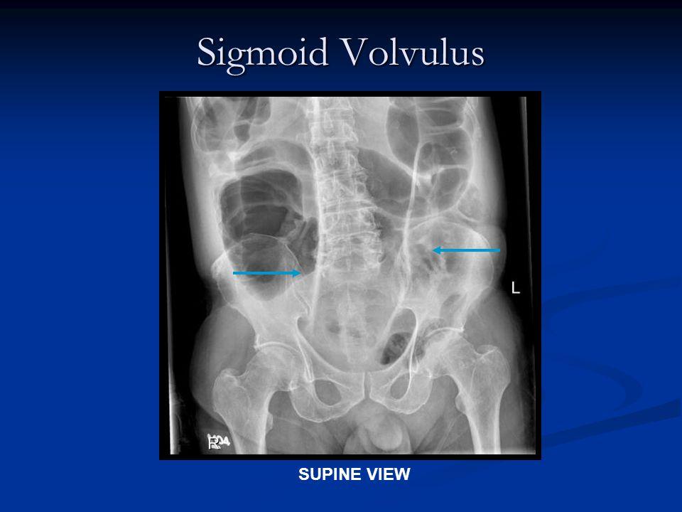 Sigmoid Volvulus SUPINE VIEW
