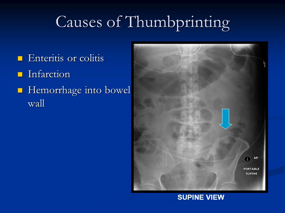 Causes of Thumbprinting