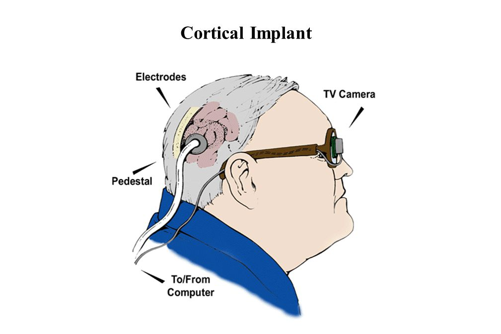 Cortical Implant