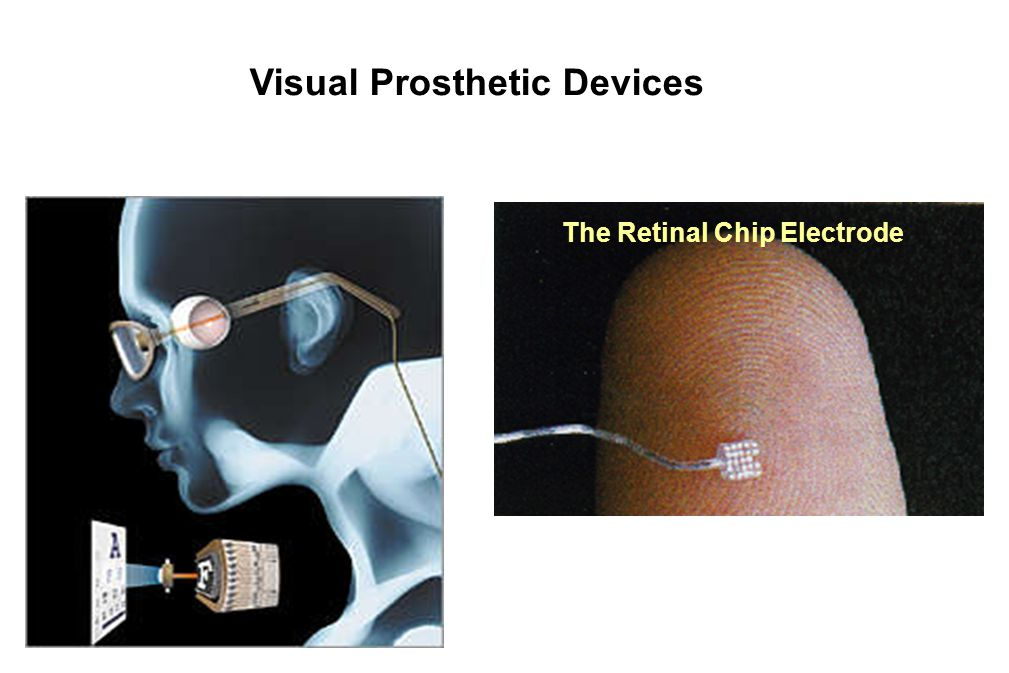 Visual Prosthetic Devices