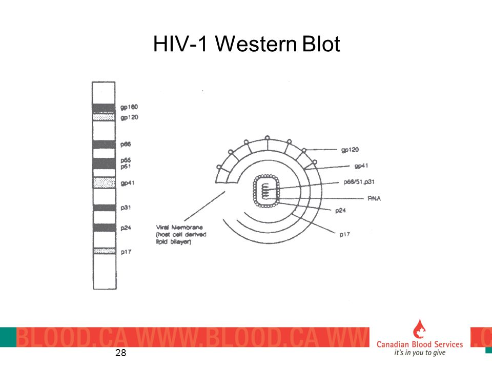 HIV-1 Western Blot 28
