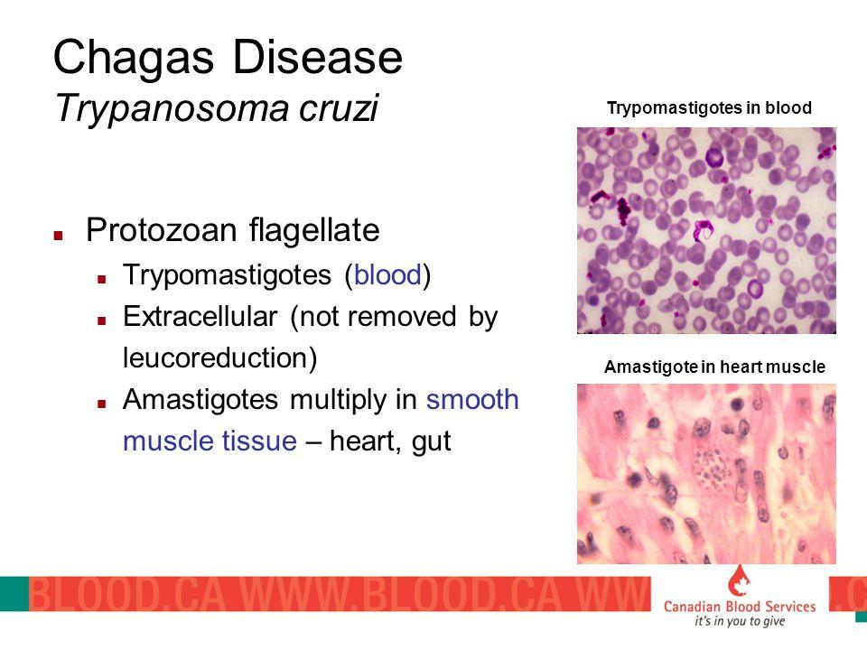 Chagas Disease Trypanosoma cruzi
