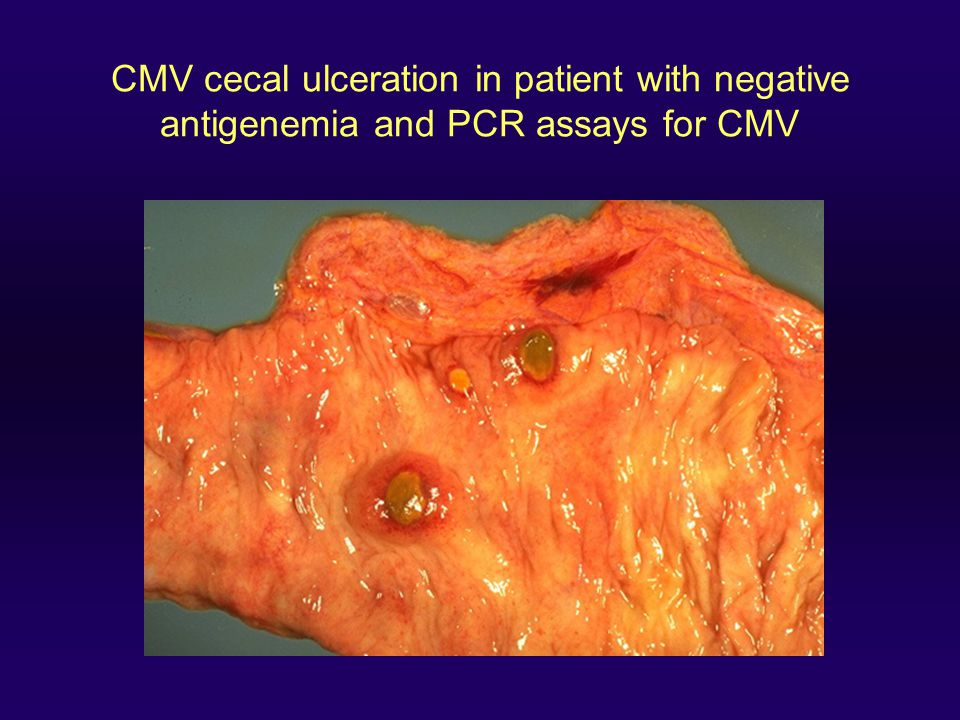 CMV cecal ulceration in patient with negative antigenemia and PCR assays for CMV