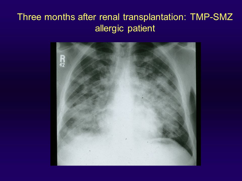 Three months after renal transplantation: TMP-SMZ allergic patient
