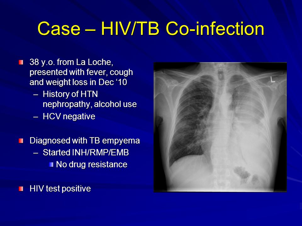 Case – HIV/TB Co-infection
