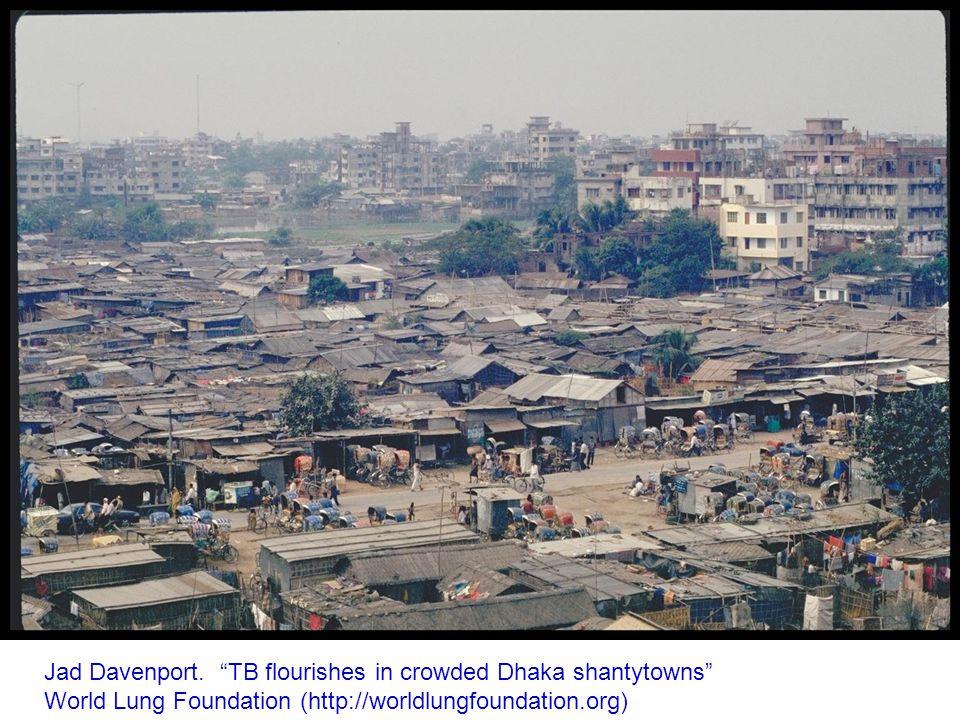 Jad Davenport. TB flourishes in crowded Dhaka shantytowns