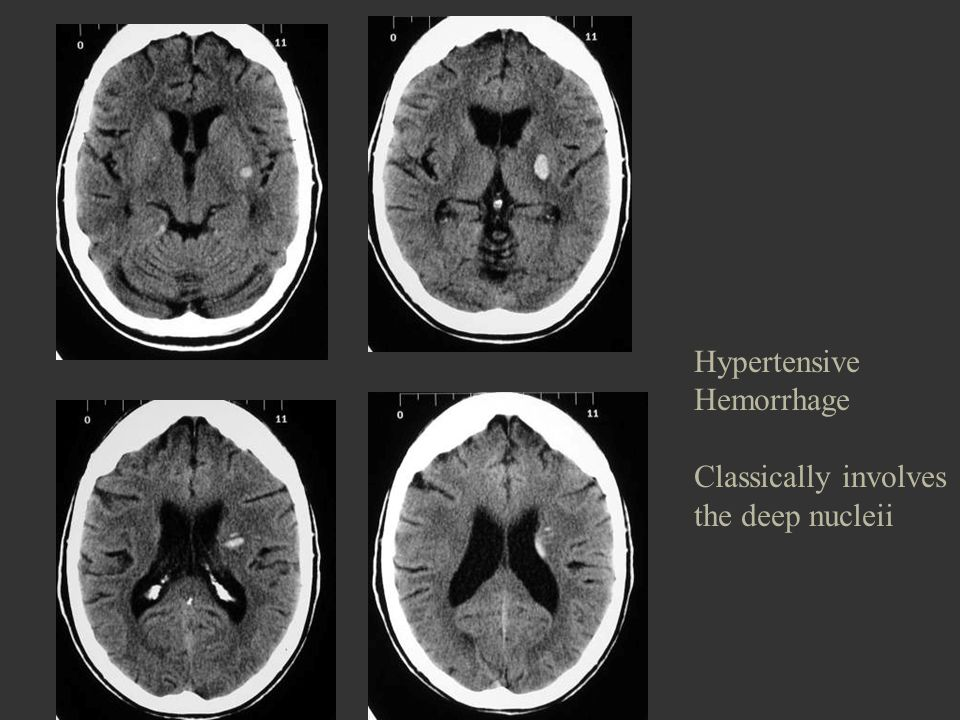 Hypertensive Hemorrhage Classically involves the deep nucleii