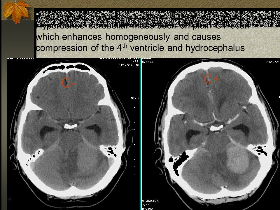 Hyperdense cerebellar mass seen on plain CT scan which enhances homogeneously and causes compression of the 4th ventricle and hydrocephalus