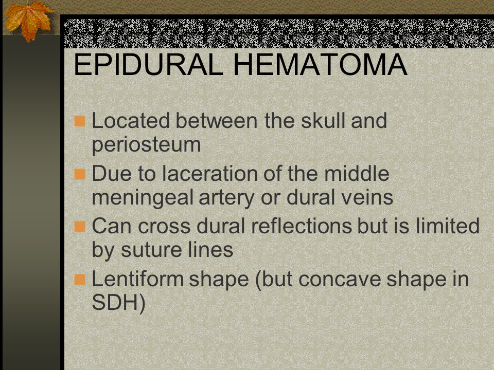 EPIDURAL HEMATOMA Located between the skull and periosteum