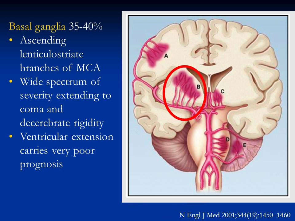 Ascending lenticulostriate branches of MCA