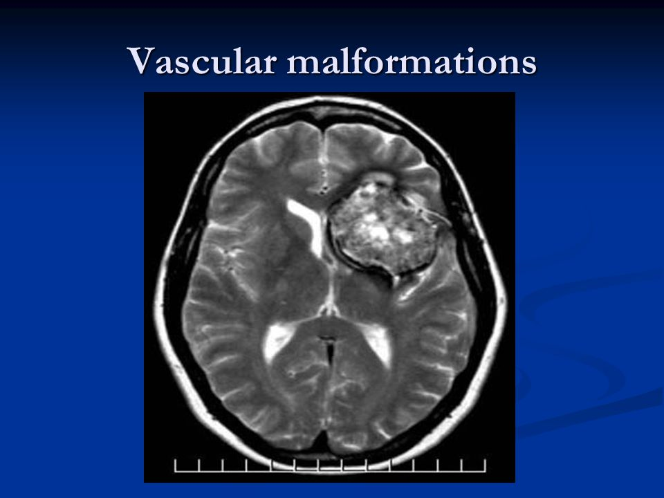 Vascular malformations