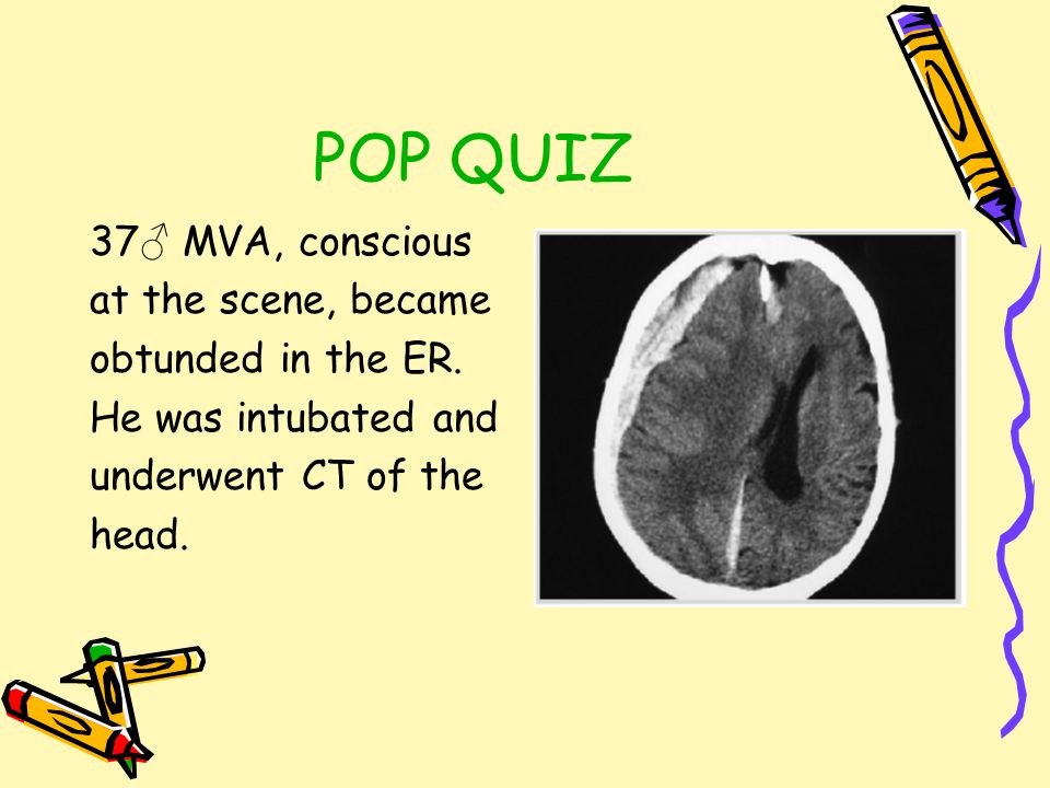 POP QUIZ 37♂ MVA, conscious at the scene, became obtunded in the ER.