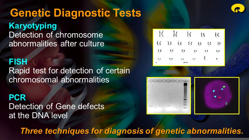Genetic Diagnostic Tests