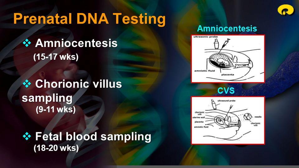 Prenatal DNA Testing Amniocentesis Chorionic villus sampling