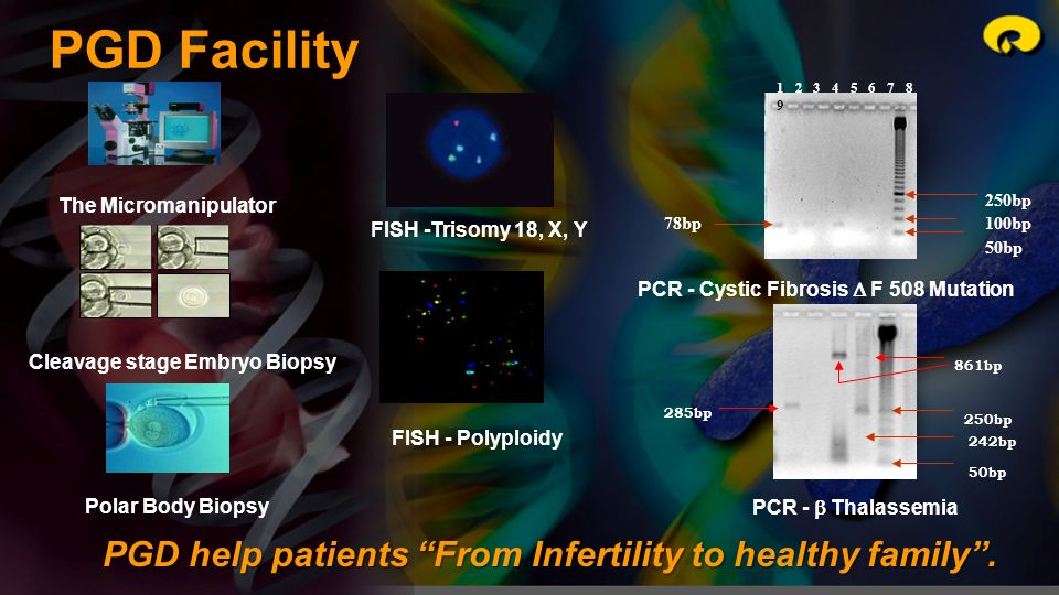 PCR - Cystic Fibrosis  F 508 Mutation Cleavage stage Embryo Biopsy
