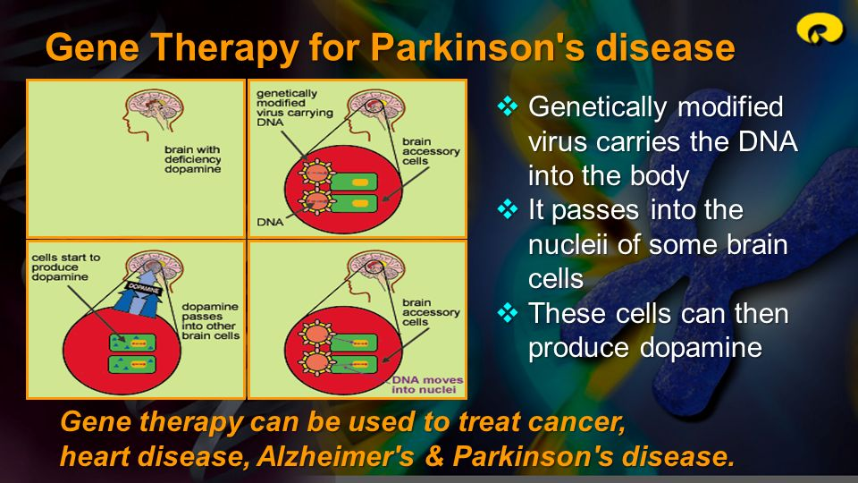 Gene Therapy for Parkinson s disease