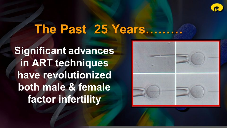 The Past 25 Years……… Significant advances in ART techniques have revolutionized both male & female factor infertility.