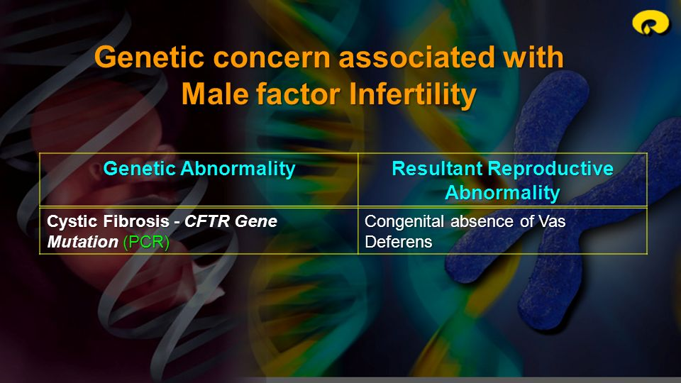 Genetic concern associated with Male factor Infertility