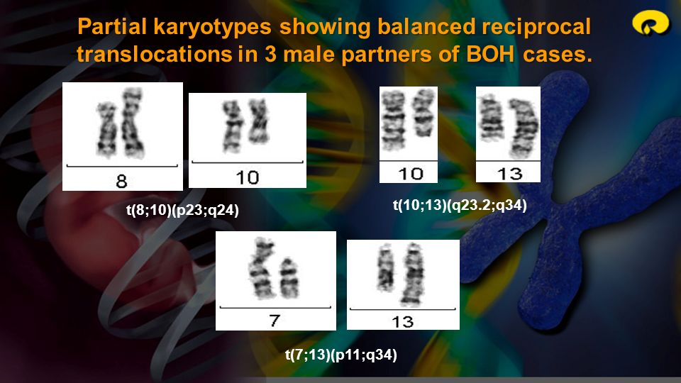 Partial karyotypes showing balanced reciprocal translocations in 3 male partners of BOH cases.