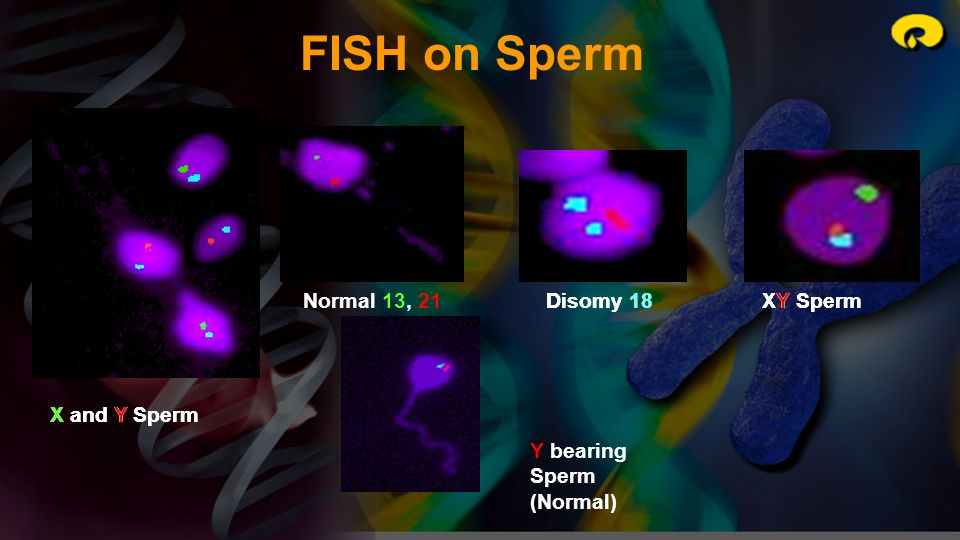 FISH on Sperm Normal 13, 21 Disomy 18 Disomy 18 XY Sperm XY Sperm