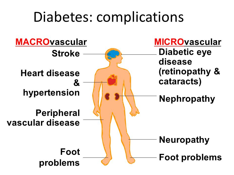 Diabetes: complications