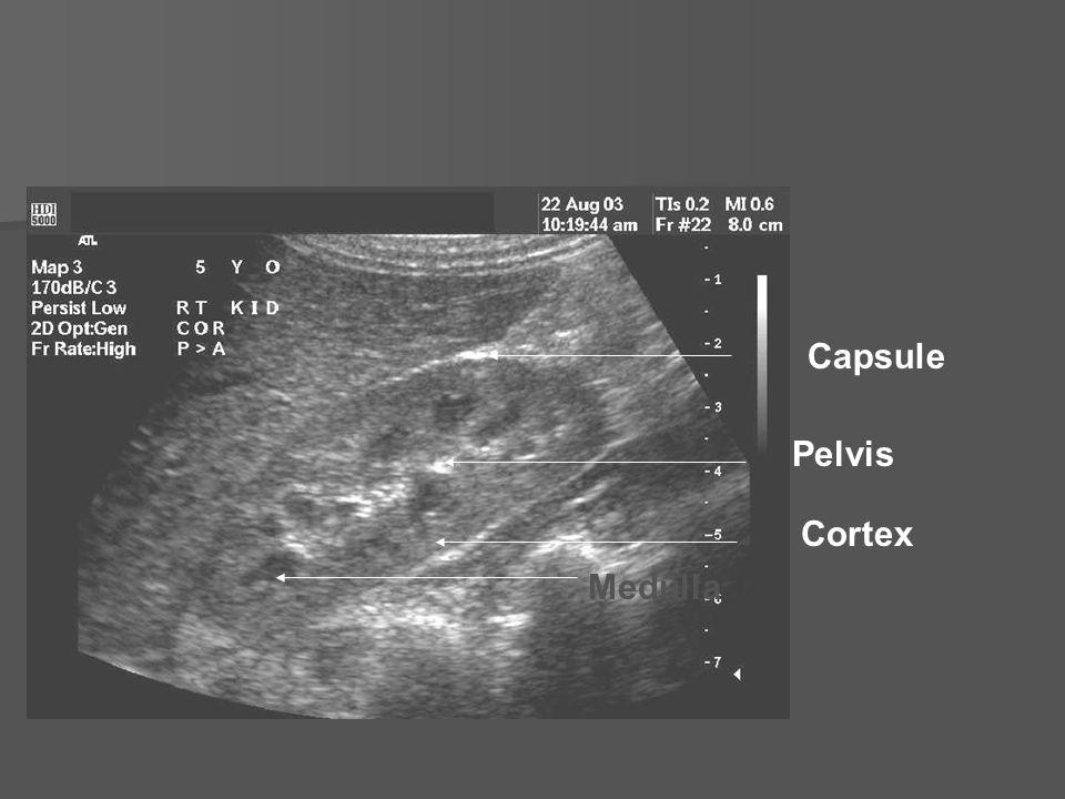 Capsule Pelvis Cortex Medulla