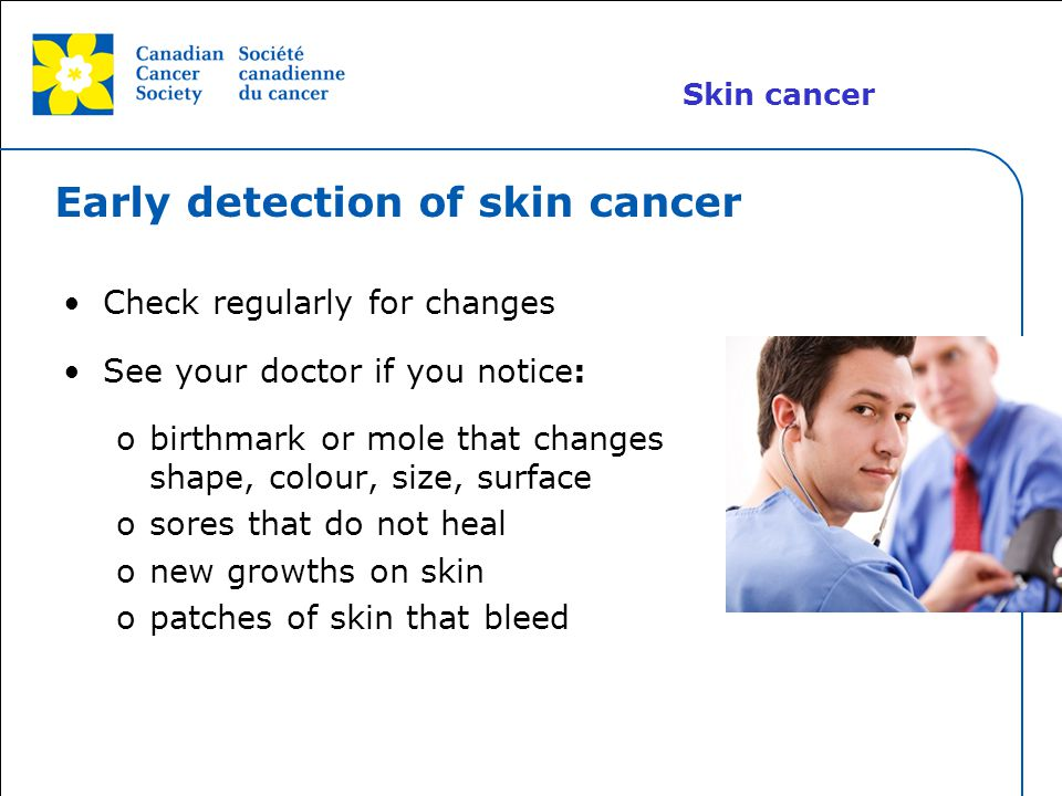 Early detection of skin cancer