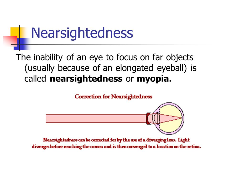 Nearsightedness The inability of an eye to focus on far objects (usually because of an elongated eyeball) is called nearsightedness or myopia.