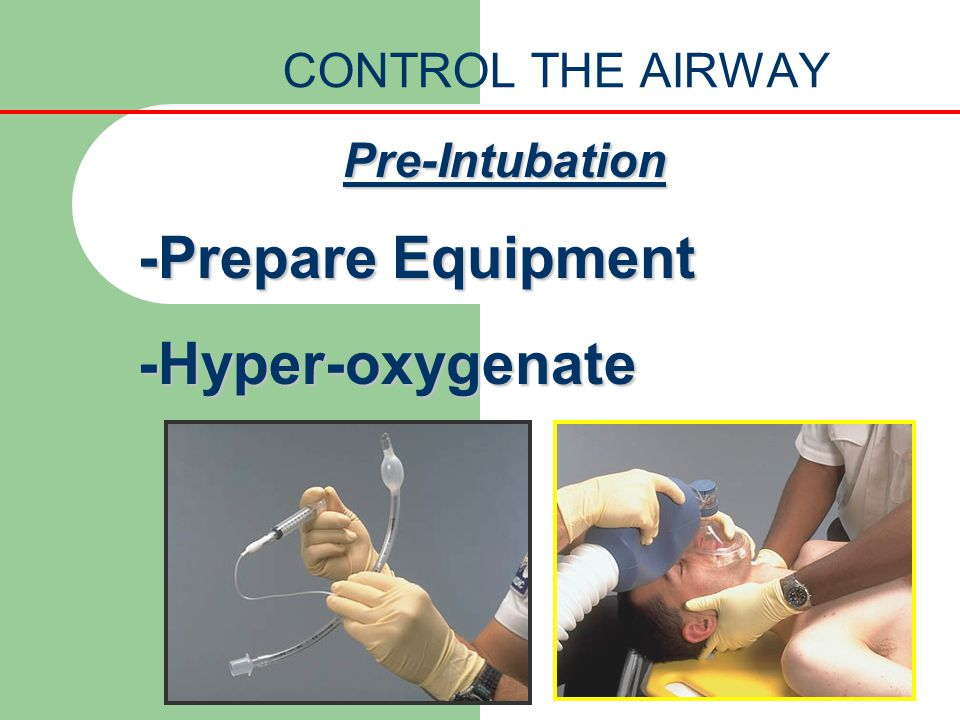 CONTROL THE AIRWAY Pre-Intubation -Prepare Equipment -Hyper-oxygenate