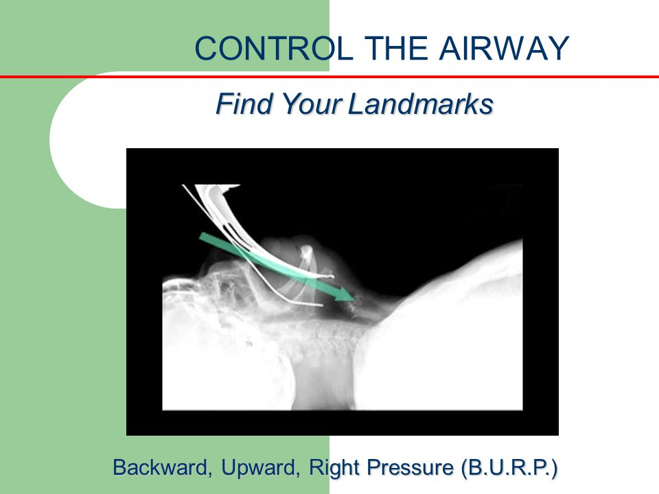 Backward, Upward, Right Pressure (B.U.R.P.)