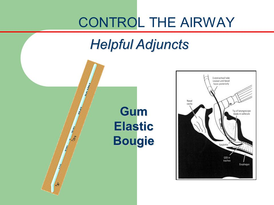 CONTROL THE AIRWAY Helpful Adjuncts Gum Elastic Bougie