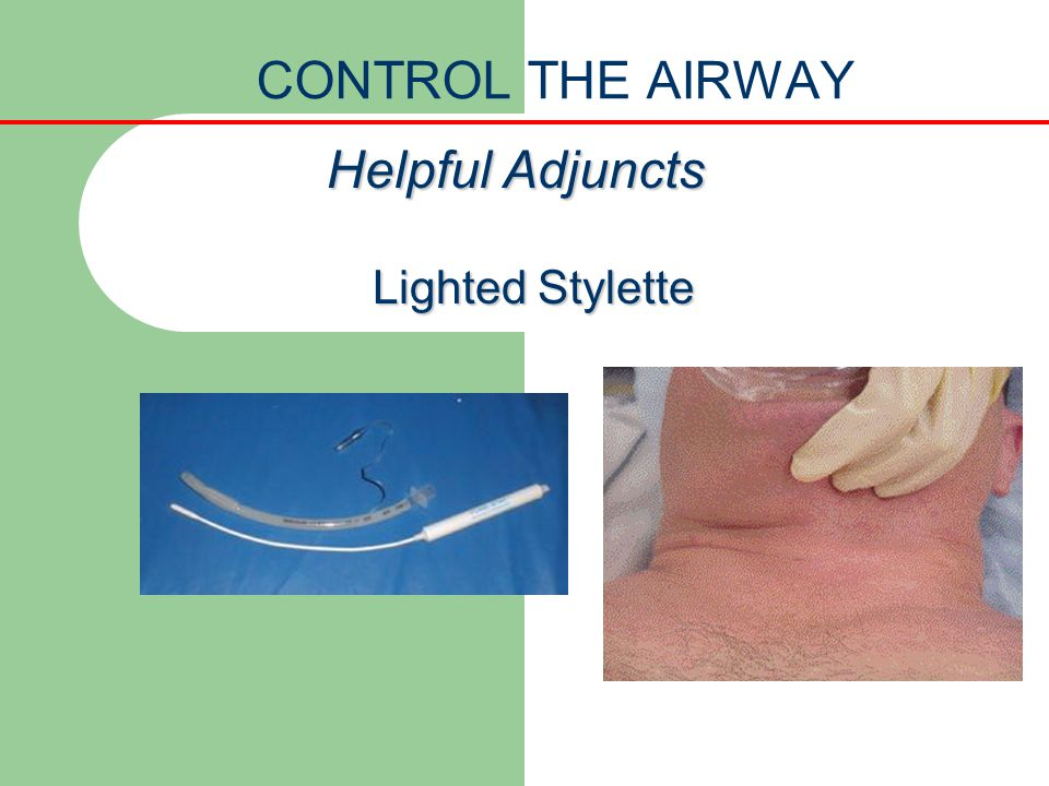 CONTROL THE AIRWAY Helpful Adjuncts Lighted Stylette