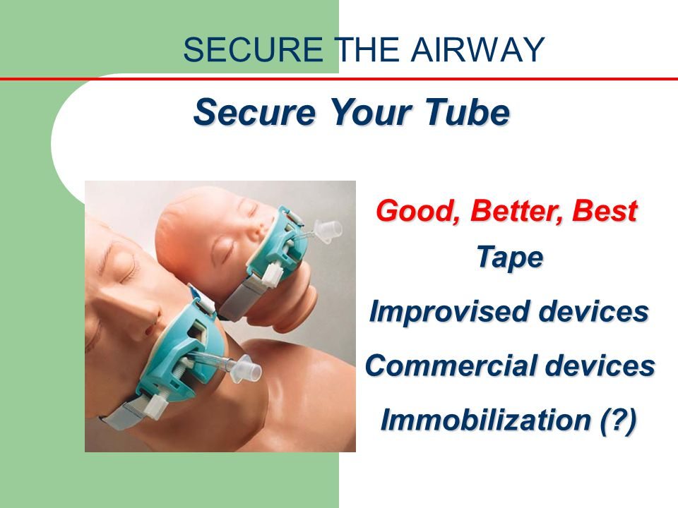 Secure Your Tube SECURE THE AIRWAY Good, Better, Best Tape