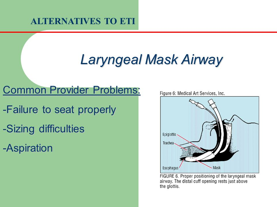 Laryngeal Mask Airway Common Provider Problems: