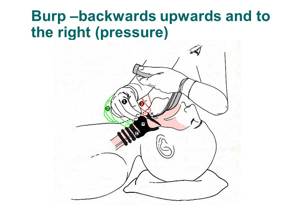Burp –backwards upwards and to the right (pressure)