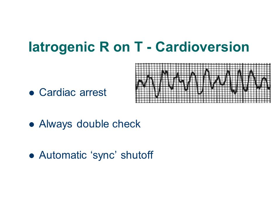 Iatrogenic R on T - Cardioversion