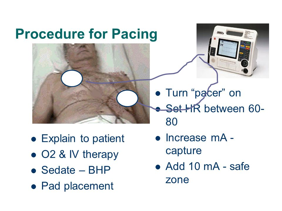Procedure for Pacing Turn pacer on Set HR between 60-80