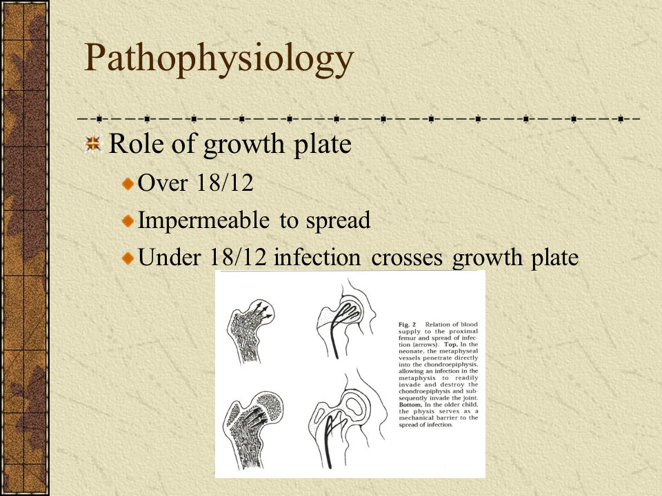 Pathophysiology Role of growth plate Over 18/12 Impermeable to spread