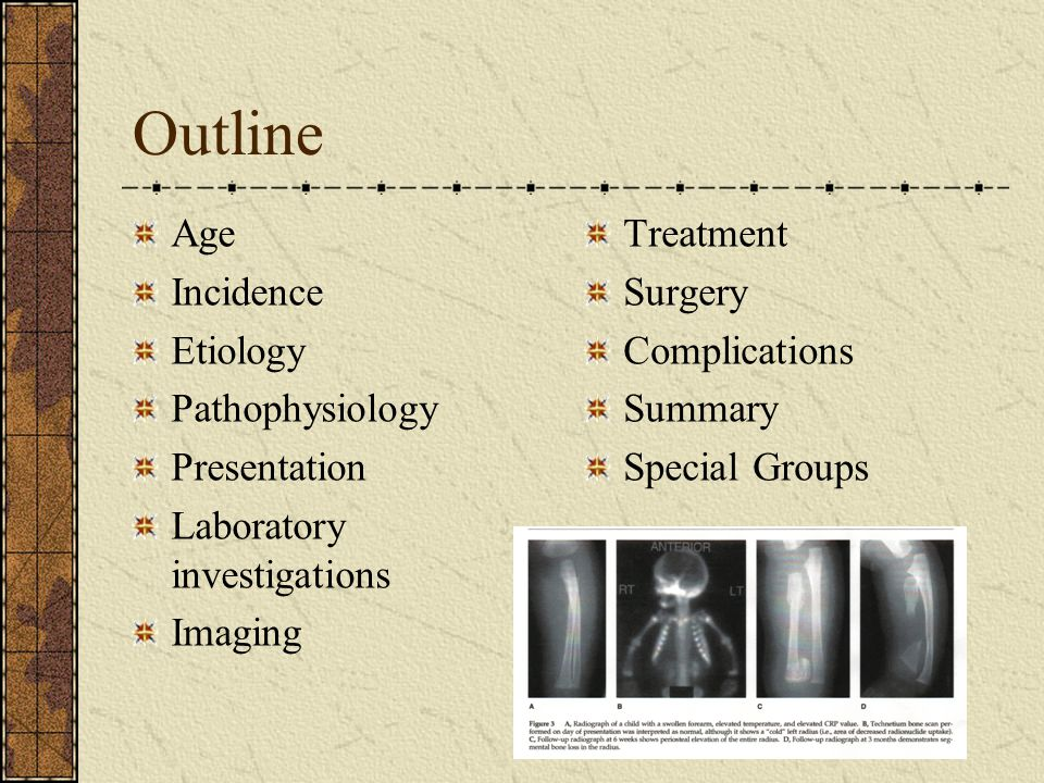 Outline Age Incidence Etiology Pathophysiology Presentation