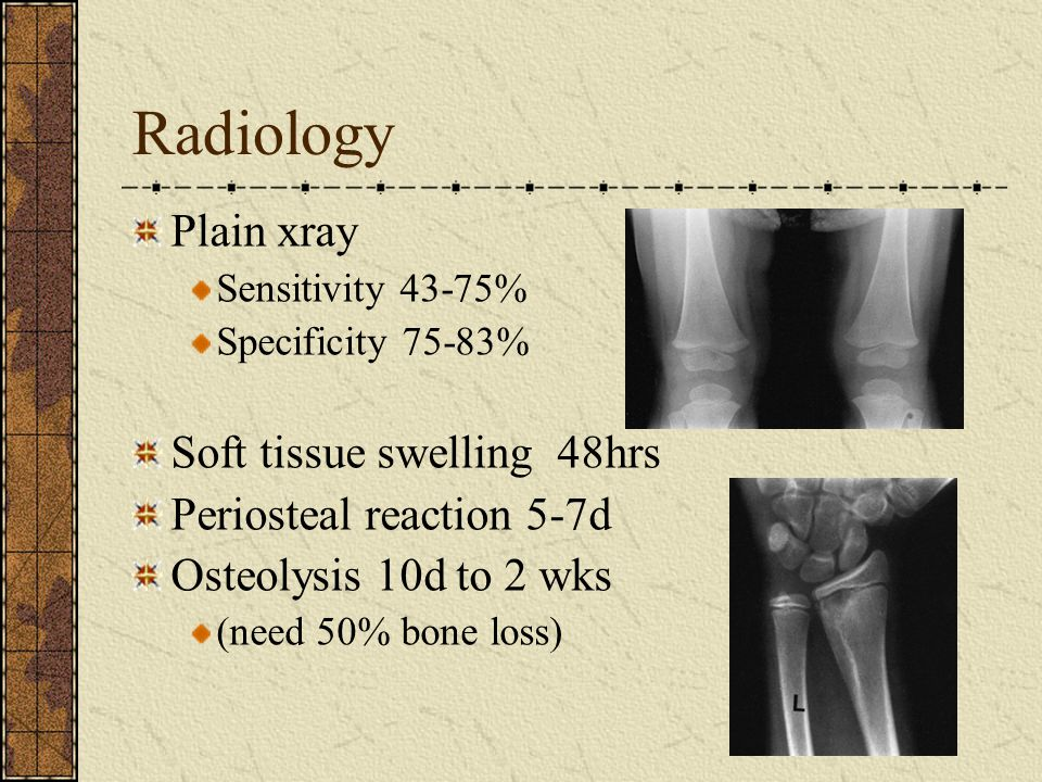 Radiology Plain xray Soft tissue swelling 48hrs