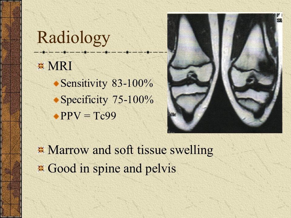 Radiology MRI Marrow and soft tissue swelling Good in spine and pelvis