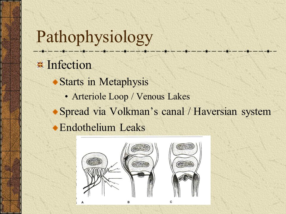 Pathophysiology Infection Starts in Metaphysis
