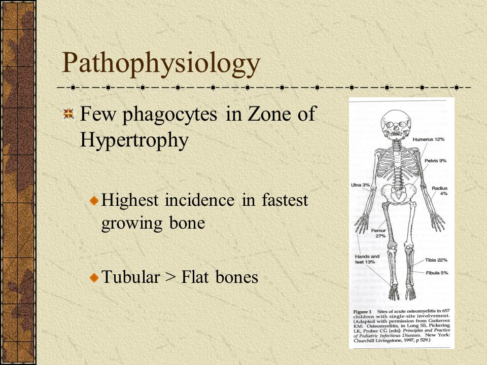 Pathophysiology Few phagocytes in Zone of Hypertrophy