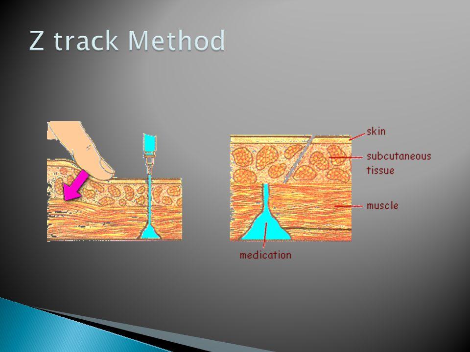 Z track Method