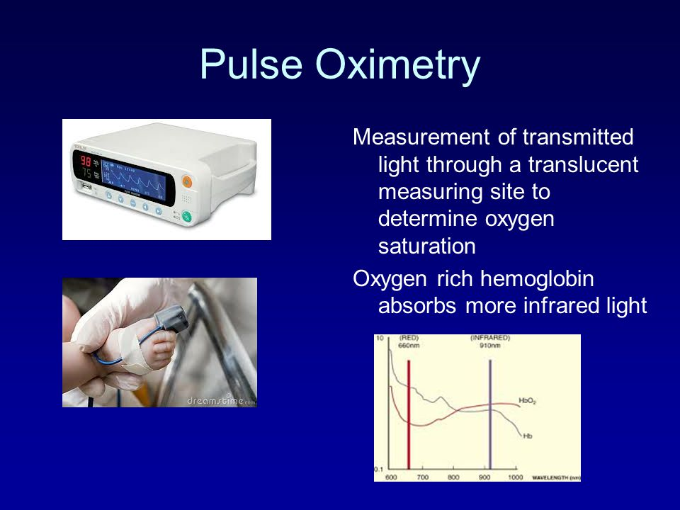 Pulse Oximetry Measurement of transmitted light through a translucent measuring site to determine oxygen saturation.