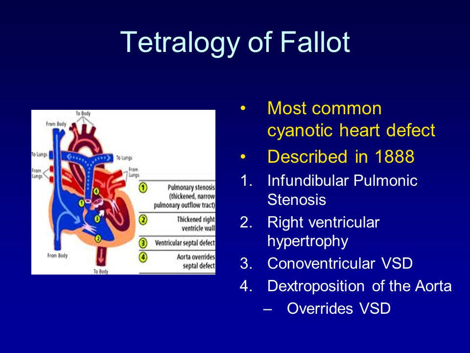 Tetralogy of Fallot Most common cyanotic heart defect
